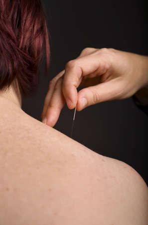 acupuncturist: Acupunturista la aplicaci�n de agujas a los pacientes del hombro Foto de archivo