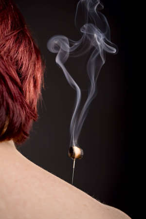 Womans shoulder with smoking moxa on acupuncture needle photo