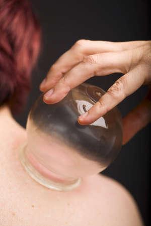 acupuncturist: Acupunturista aplicaci�n de ventosas de vac�o a los pacientes del hombro Foto de archivo