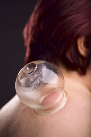 cupping: Close-up of a person receiving vacuum cupping treatment