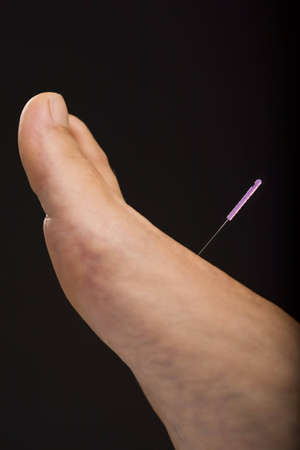 Close-up of foot receiving acupuncture treatment Stock Photo