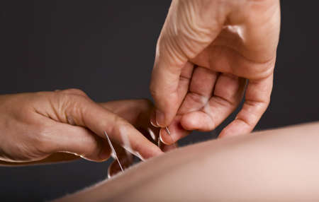 Close-up of acupuncturists hands working on female back
