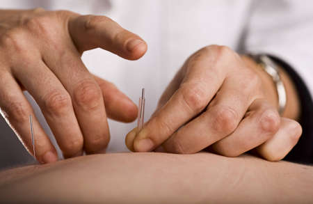 Acupuncturist prepares to tap needle into patients back