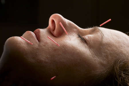 Female acupuncture patient receiving treatment to face