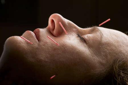 acupuntura china: Mujeres que reciben tratamiento de acupuntura paciente para hacer frente a
