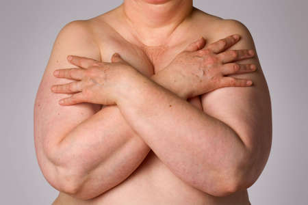 Naked mature and overweight woman covering breasts Stock Photo - 4906822