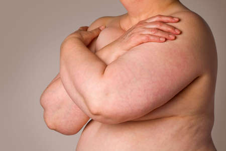 Close-up of overweight naked woman covering breasts Stock Photo - 4906817