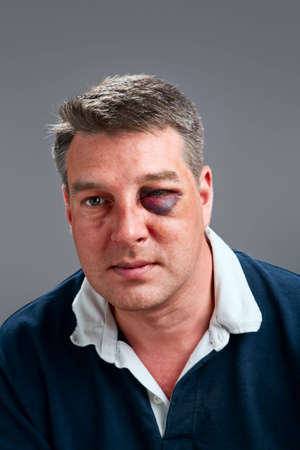 Portrait of a Caucasian male with bruised black eye