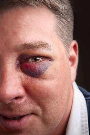 Portrait of a man with a black eye