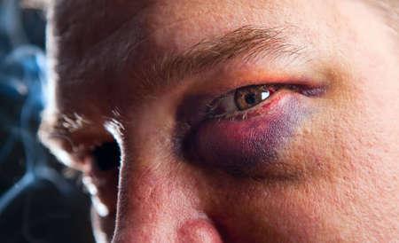Close-up of man with genuine black eye - focus on eye
