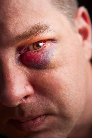 Close-up of man with genuine black eye - focus on eye