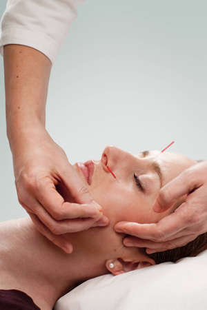 Acupuncture patient receiving treatment to her face photo