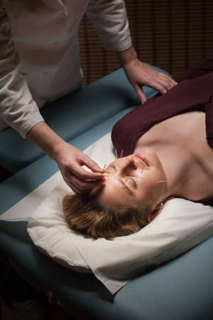 Female acupuncture patient receiving treatment to her face Stock Photo