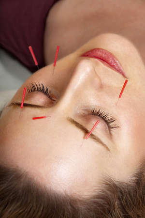 color therapy: Female patient receiving acupuncture treatment to her face Stock Photo