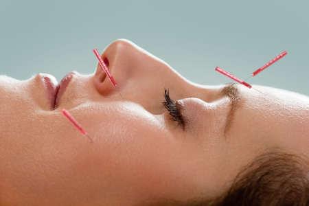 acupuntura china: Perfil de acupuntura femenina pacientes reciben tratamiento de acupuntura facial