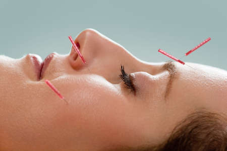 color therapy: Profile of female acupuncture patient receiving facial acupuncture treatment