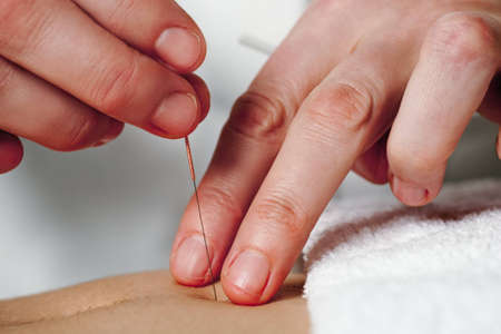 Close-up of hands of professional acupuncturists hands treating patients stomach