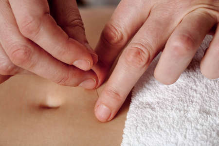 Close-up of acupuncturists hands giving treatment to patients belly