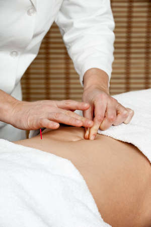 Acupuncturist applying acupuncture needle to patients belly