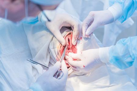 Le mani del medico di un chirurgo che ritaglia il taglio della pelle dopo un'operazione per rimuovere l'ateroma sulla testa del paziente in ospedale. Foto di concetto di medici professionisti, medicina indolore Archivio Fotografico - 92656541