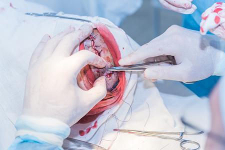 Le mani del medico di un chirurgo che ritaglia il taglio della pelle dopo un'operazione per rimuovere l'ateroma sulla testa del paziente in ospedale. Foto di concetto di medici professionisti, medicina indolore Archivio Fotografico - 92605756