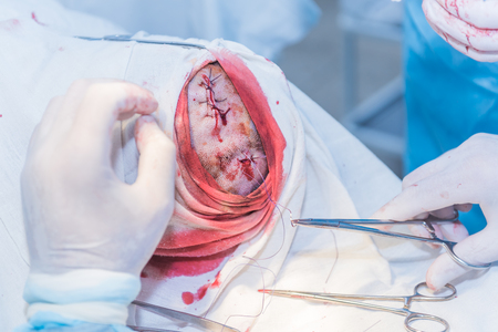 the hands of a surgeon's doctor sewing up the cut of the skin after an operation to remove the atheroma on the patient's head in the hospital. concept photo of professional doctors, painless medicine