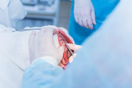 Le mani di un medico chirurgo che ricucisce il taglio della pelle dopo un'operazione per rimuovere l'ateroma sulla testa del paziente in ospedale. Archivio Fotografico - 92610209