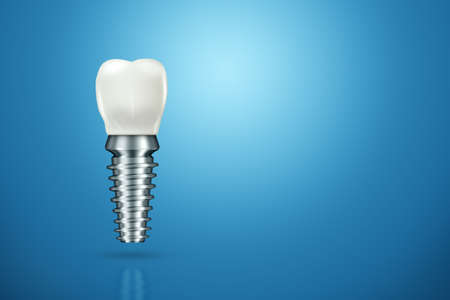 Dental implant, stainless steel post on cinemphon, medical information poster. Teeth replacement concept, denture. 3D illustration, 3D graphics