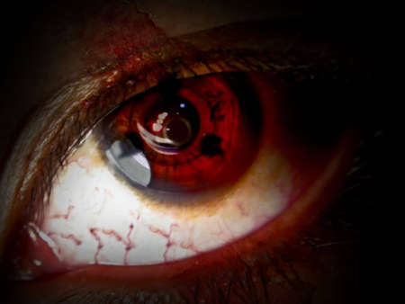 paranoia: Occhi piaga