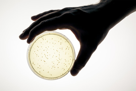 An image of a hand holding a petri dish photo