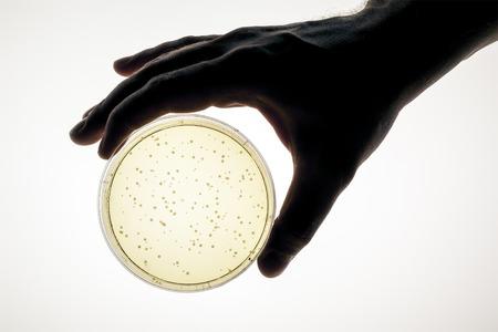 L'immagine di una mano che tiene una capsula di Petri Archivio Fotografico - 22725510