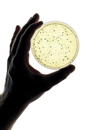 Een afbeelding van een hand die een petrischaaltje