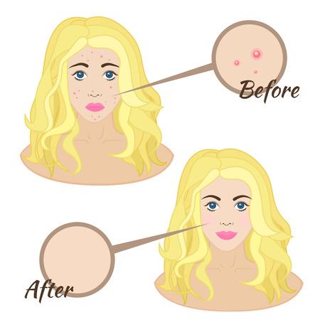 pubertad: Cara de la muchacha con el acn�, la piel del acn� la piel clara antes y despu�s Vectores