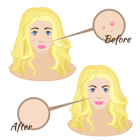 Girl face with acne, skin acne clear skin before and after