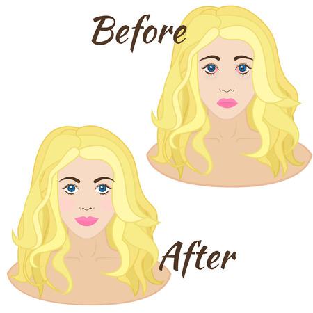 eye disease: girl with red eyes, eye disease or allergies Illustration