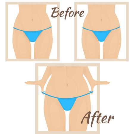 removal: female torso in red bikini, skin irritation from shaving, shaving the hair in the bikini area