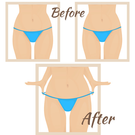 irritation: female torso in red bikini, skin irritation from shaving, shaving the hair in the bikini area