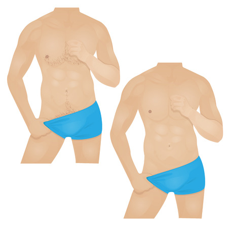 briefs: man with a hairy chest and a man s body is smooth with no hair, men s hair removal Illustration
