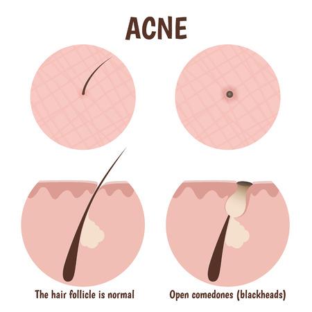 follicle: estructura del fol�culo del pelo, piel problem�tica con puntos negros Vectores