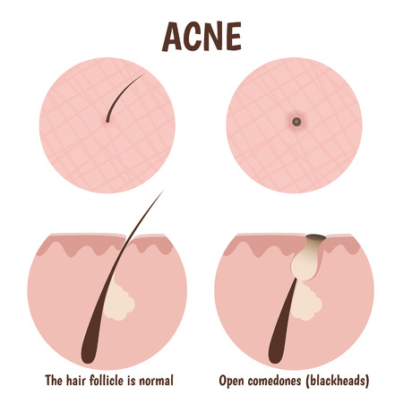 pore: structure of the hair follicle, problematic skin with blackheads