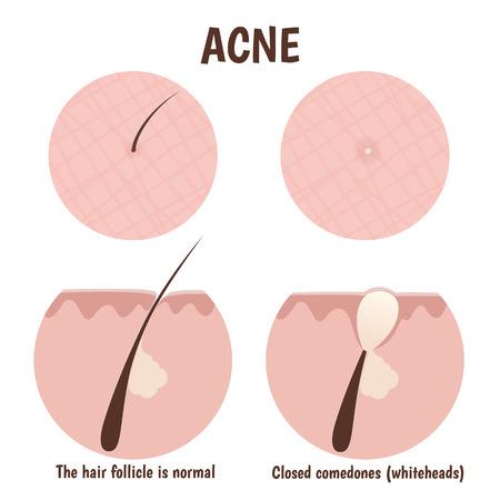 follicle: estructura del fol�culo del pelo, piel problem�tica con puntos blancos