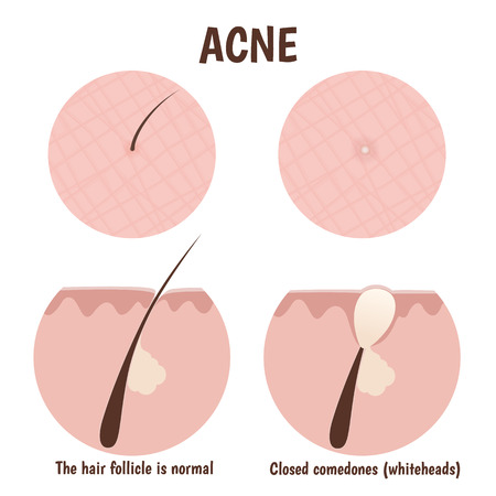 skin structure: structure of the hair follicle, problematic skin with whiteheads
