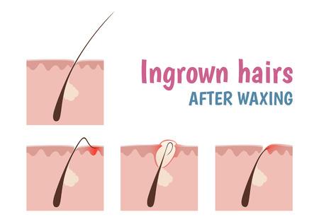 모낭의 구조, 안쪽으로 자란 머리카락은 면도와 제모 할 때