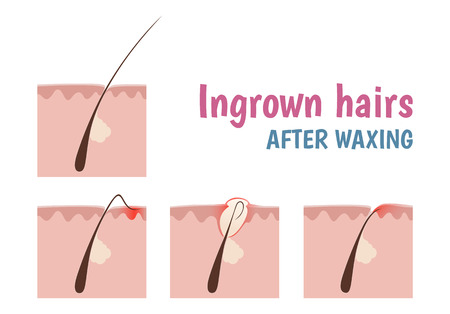 pore: structure of the hair follicle, ingrown hairs when shaving and depilation