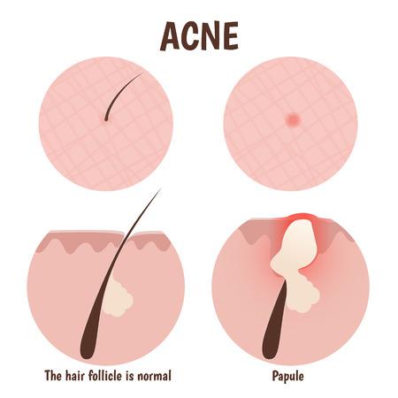 skin infections: estructura del fol�culo del pelo, la piel del problema con p�pulas Vectores