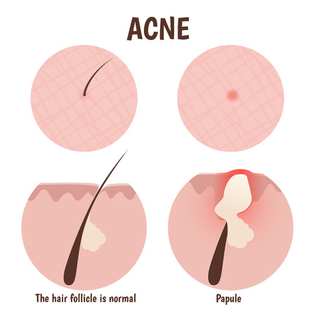 pore: structure of the hair follicle, problem skin with papules Illustration