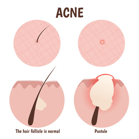 skin structure: structure of the hair follicle, problem skin with pustules, pimples Illustration