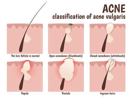 estructura del folículo del pelo, la piel del problema con pústulas, acné, espinillas y comedones abiertos blancos cerrados