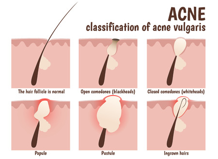 structure of the hair follicle, problem skin with pustules, acne, open blackheads and closed comedones whiteheads