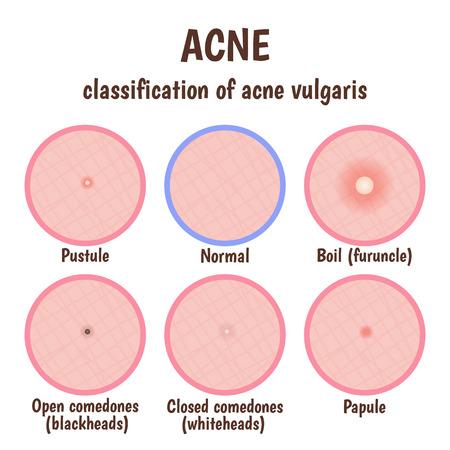 skin infections: piel del problema con p�stulas, acn�, espinillas y comedones abiertos blancos cerrados
